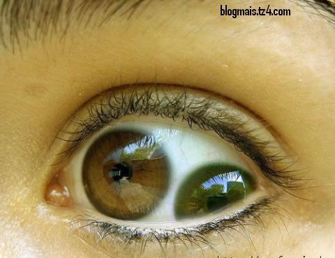 dupla visão